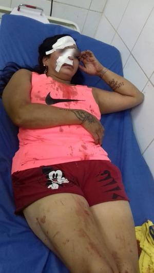 Babahoyo: A Claudia le desfiguraron el rostro producto de cortes