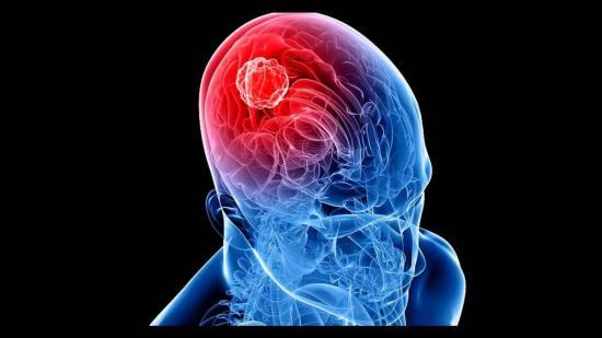 Cáncer de cabeza y cuello deja más de 20 mil muertos al año en América del Sur y Centro