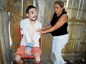 Edison fue encadenado hace dos años en una esquina de su casa