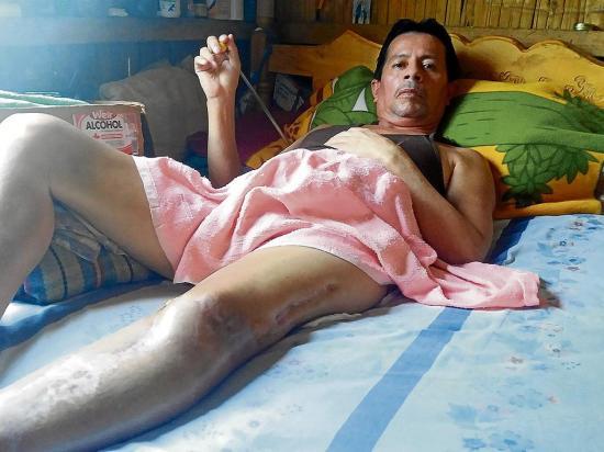 Un accidente en moto lo dejó en cama hace más de tres años