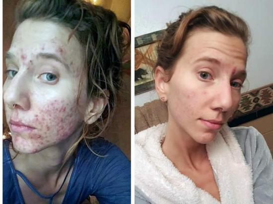 Terapia  de orina para la piel