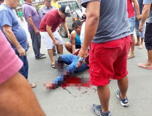 Un motociclista fue impactado por un volquete y queda severamente herido