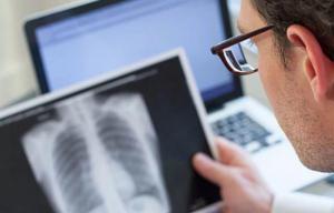 Científicos confirman que colonizadores europeos expandieron la tuberculosis
