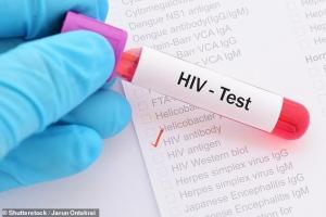 Una vacuna reduce el virus latente del VIH y abre nuevas vías de tratamiento