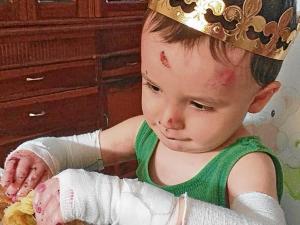 Siete niños de Manabí tienen 'Piel de mariposa'