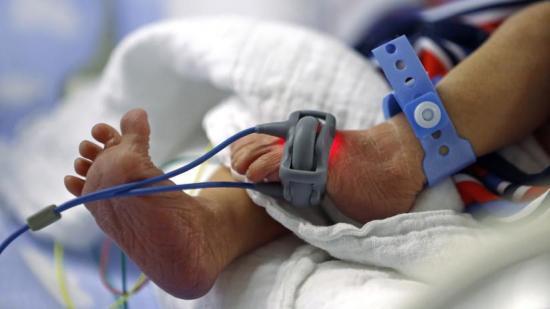 Nace una bebé con el corazón fuera del tórax en Bolivia