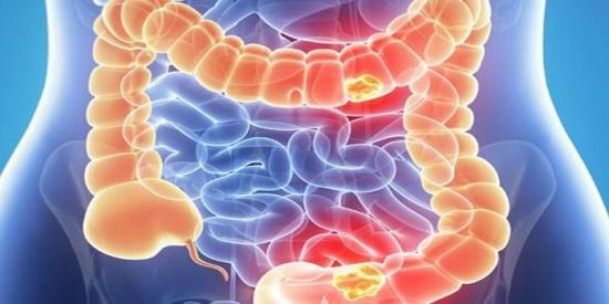 Mala alimentación incrementa riesgo de padecer cáncer colorrectal