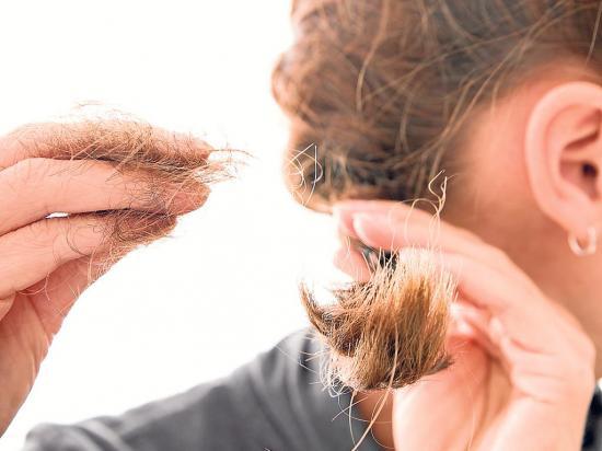 ¿Sufres de pérdida de cabello?