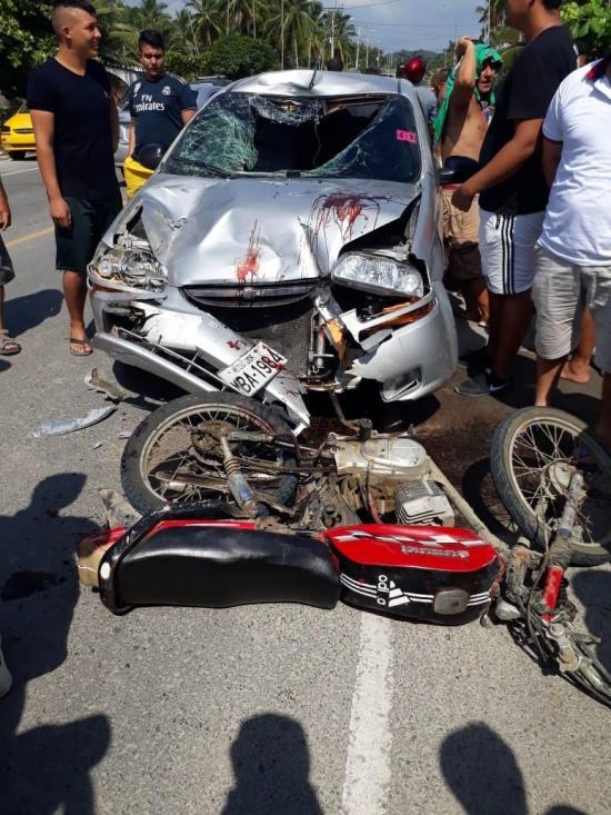 Pierde la pierna en accidente de moto