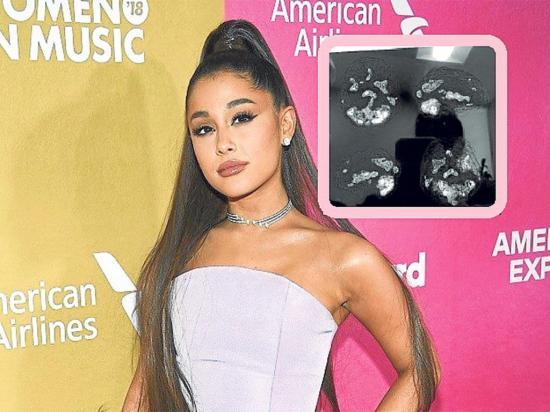 Ariana Grande muestra el estado de su cerebro tras atentado terrorista