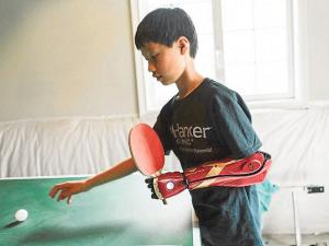 Niño usa un brazo biónico