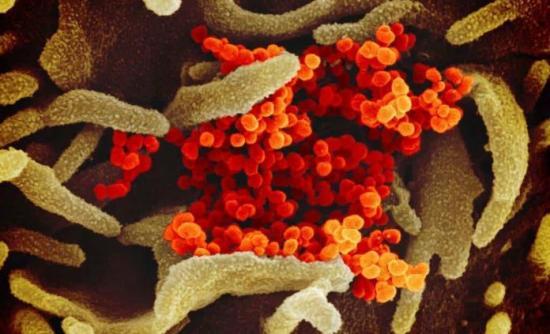 Científicos mexicanos trabajan en estrategias de detección del coronavirus