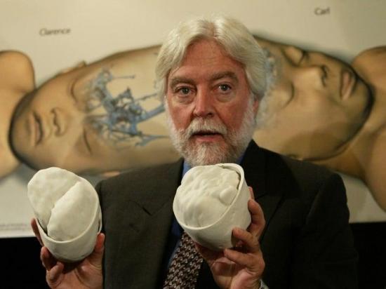 Fallece por coronavirus el neurocirujano Goodrich, conocido por la separación de siameses
