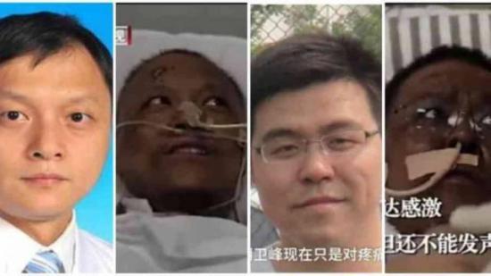 Problema hepático por COVID-19 causa ennegrecimiento a dos médicos chinos