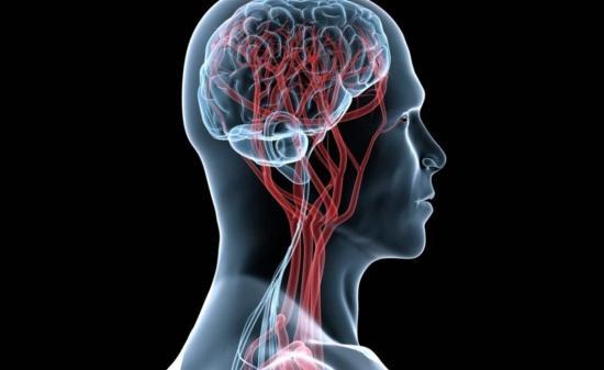 Derrames cerebrales atacan con más gravedad en pacientes con Covid-19, dice experto