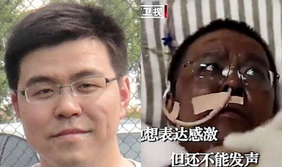 Murió Hu Weifeng, uno de los médicos cuya piel se oscureció tras contraer el coronavirus