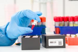 Se pierden 250.000 pruebas de coronavirus en Honduras por mal manejo de temperatura