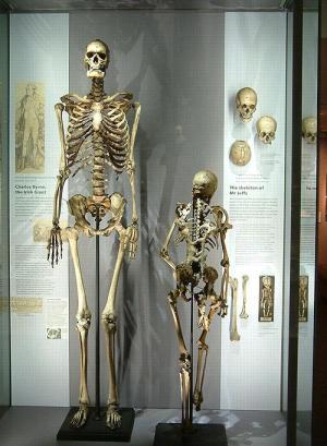 Piden que el esqueleto del 'gigante irlandés' vuelva a la Isla Esmeralda