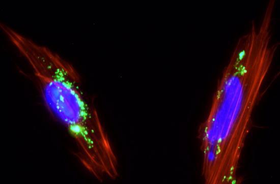 La transfusión de células madre ayuda a reparar el daño de COVID-19 en casos graves